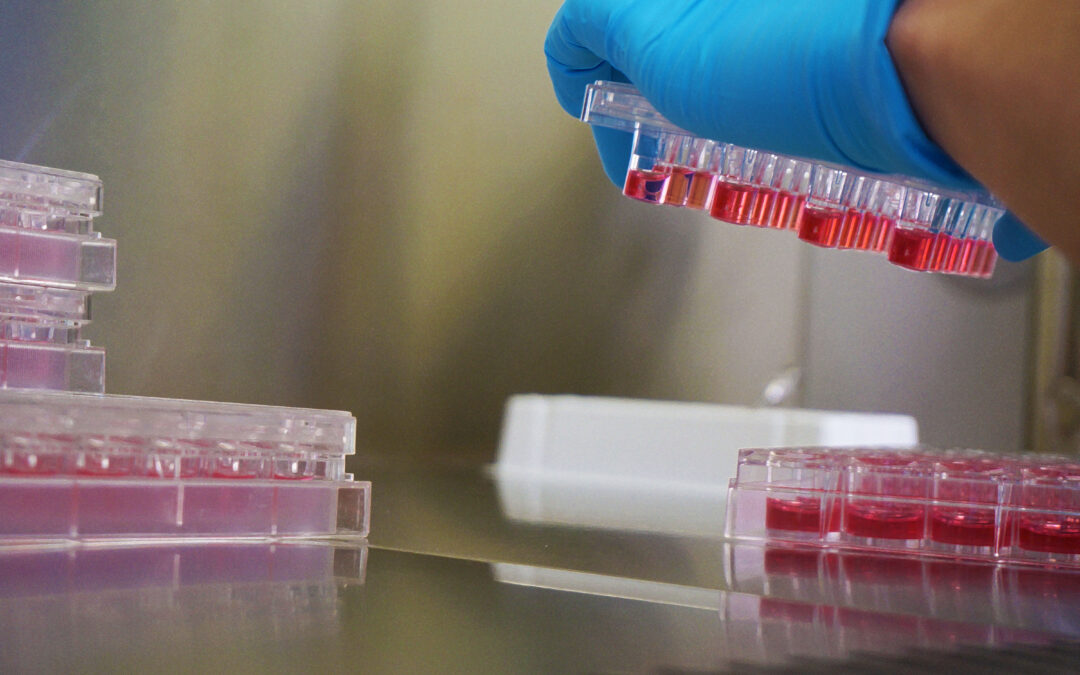 Recommended cell-based in vitro testing to assess BCRP protein-mediated transport